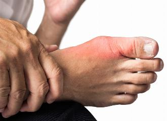 thumbnail of Everything You Need to Know About Gout