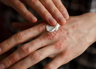 thumbnail of Eczema Treatment Can Provide Relief